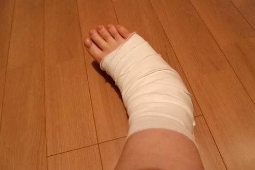 受傷時には、RICE処置が大切です。